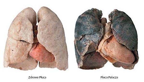 Dusza jak płuca – (Łk 17,11-19)